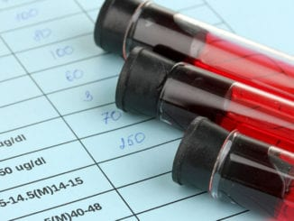 A federal jury awarded a man $18.4 million over cancelled HIV test